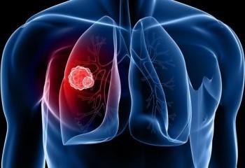 Akciğer kanserininnedenleri nelerdir ?