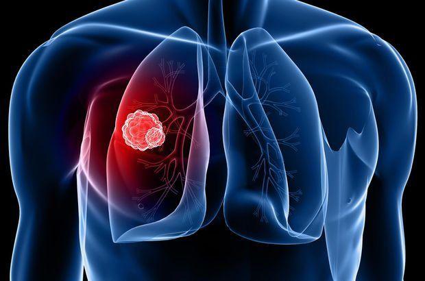 Akciğer kanserinedenleri nelerdir ? Sağlık  nelerdir nedenleri kanseri