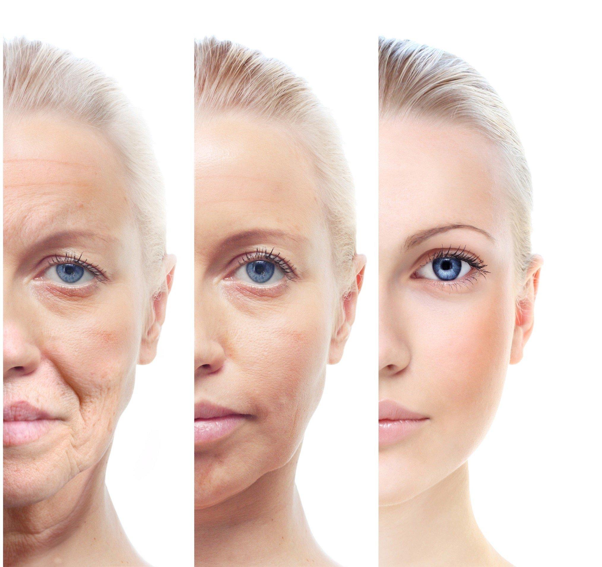 Foto yaşlanma nedir? Sağlık  nedir lanma