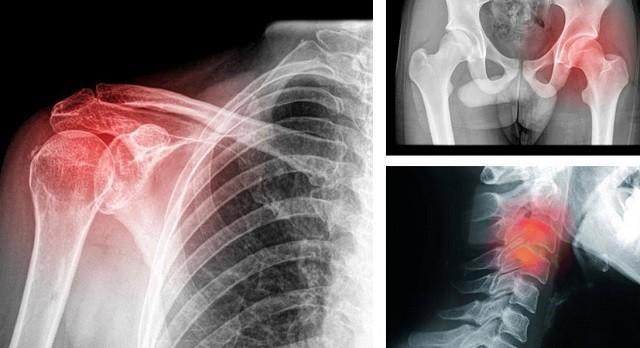 Bel ve sırt ağrısı sebepleri, tedavisi Sağlık  tedavisi sebepleri