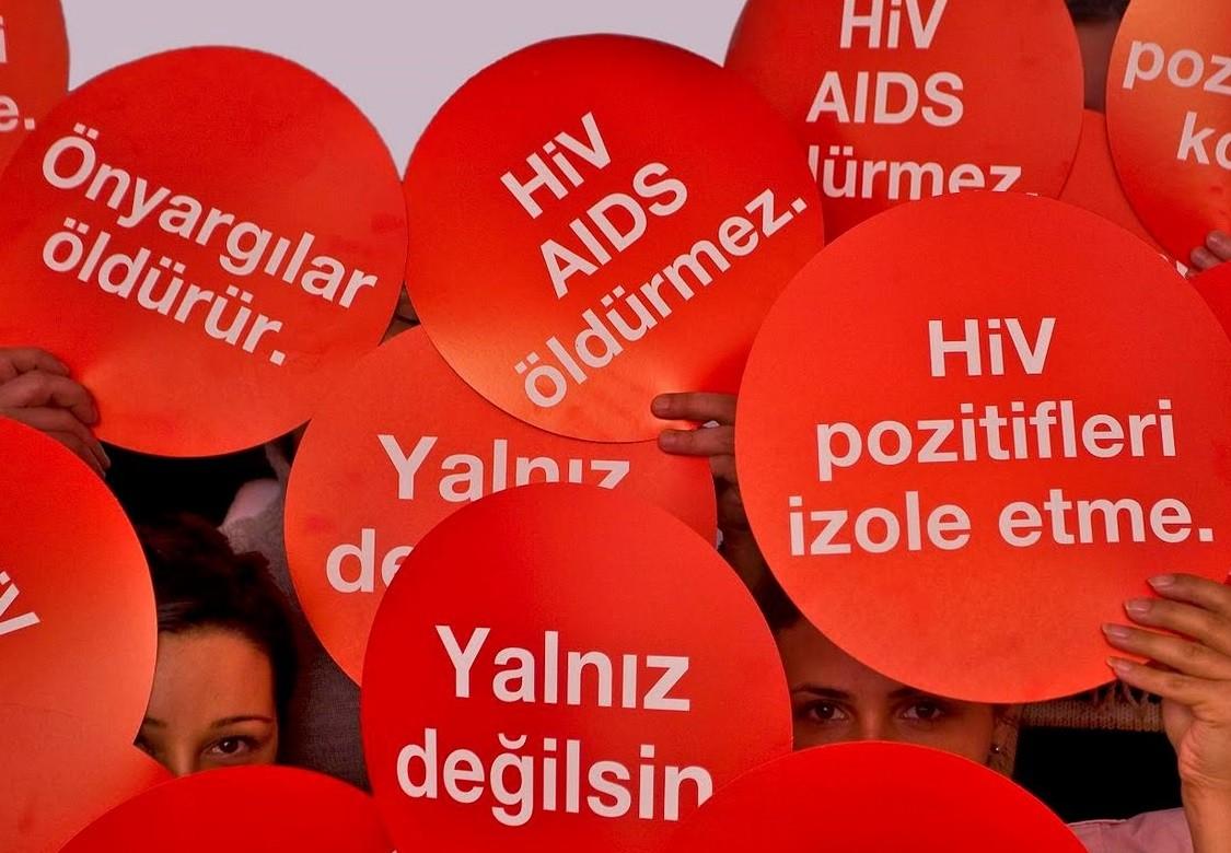 HİV aids