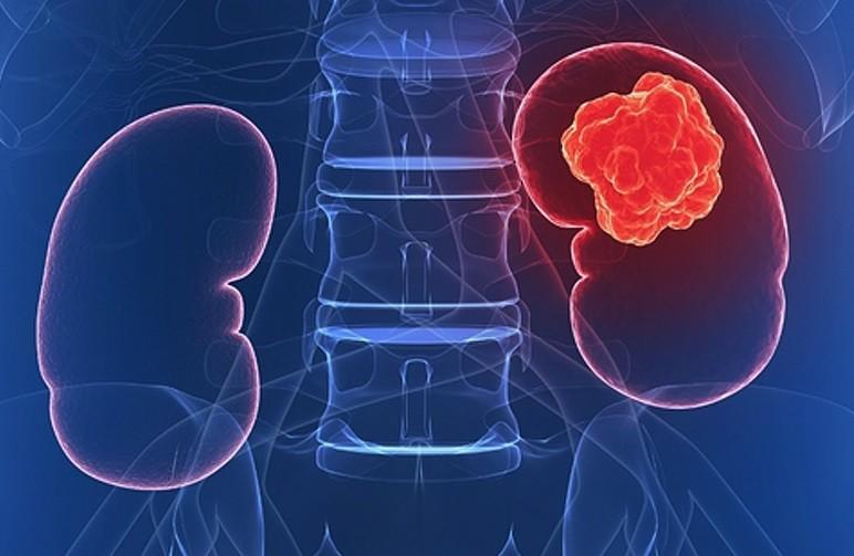 Böbrek Kanseri Türleri neler ? Sağlık  turleri neler kanseri bobrek