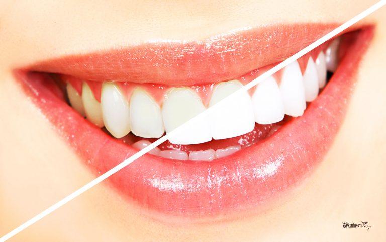 Lazerle Diş Beyazlatma Nasıl Yapılır? Sağlık  Lazerle Diş Beyazlatma Zararlı Mı Lazerle Diş Beyazlatma Nasıl Yapılıyor Lazerle Diş Beyazlatma evde diş beyazlatma Dişimi nasıl beyazlatırım diş beyazlatma nasıl yapılır Diş Beyazlatma