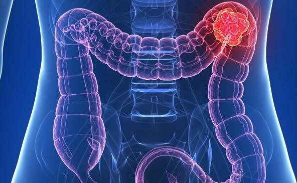 Kolon kanserini önlemek için keten tohumu Sağlık  kolon kanserinde beslenme pdf kolon kanserinde beslenme nasıl olmalı kolon kanserinde beslenme erkan topuz kolon kanseri hastasi beslenme kolon kanseri hastaları ne kadar yaşar kolon kanseri belirtileri kolon kanseri ameliyatı sonrası yemek bağırsak kanseri sonrası beslenme