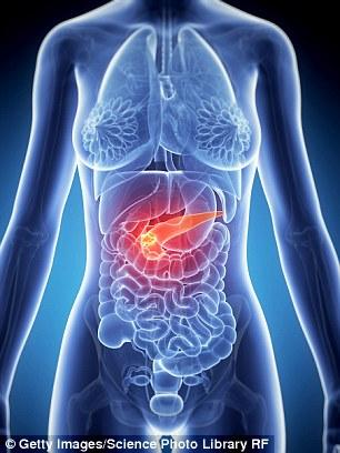 Akut Pankreatit Nedir Nasıl Tedavi Edilir ? Sağlık  pankreatit tedavisi ne kadar sürer pankreatit ölümcülmüdür pankreatit nedir tedavisi pankreatit ne demek pankreatit geçiren hastalar akut pankreatit pdf akut pankreatit hasta yorumları akut pankreatit diyeti